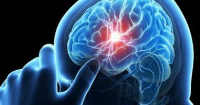 dt_150709_migraine_headache_brain_stroke_800x600-e1466939700651-774x445