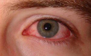 sindromul-ochiului-uscat