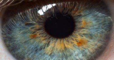 eye-2832