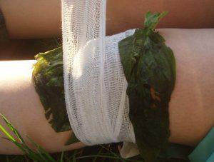 Comfrey-Poultice-leg-bandage-300