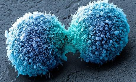 Fără lipide, celulele canceroase mor