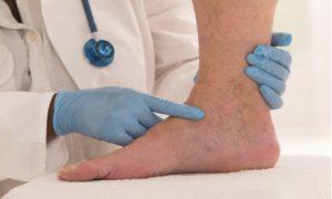 tratamentul varicozei varicose laser sevastopol