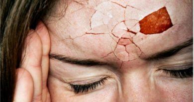 Zeci de leacuri pentru durerea de cap