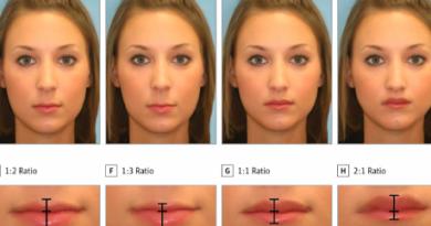 lips (copy)
