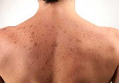 Remedii pentru petele solare, precursorii cancerului de piele