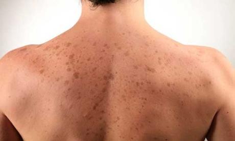 лишаи-кожное-заболевание