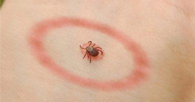Lyme-Disease-In-Toddlers