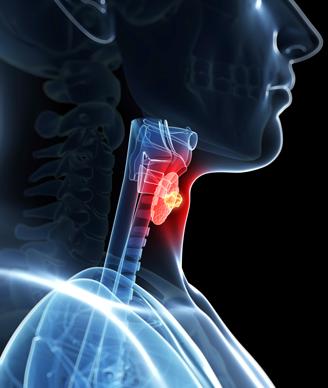 thyroid-cancer-Sebastian-Kaulitzki-ss-328