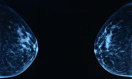 Mamografiile, implicate în înmulţirea cazurilor de cancer de sîn
